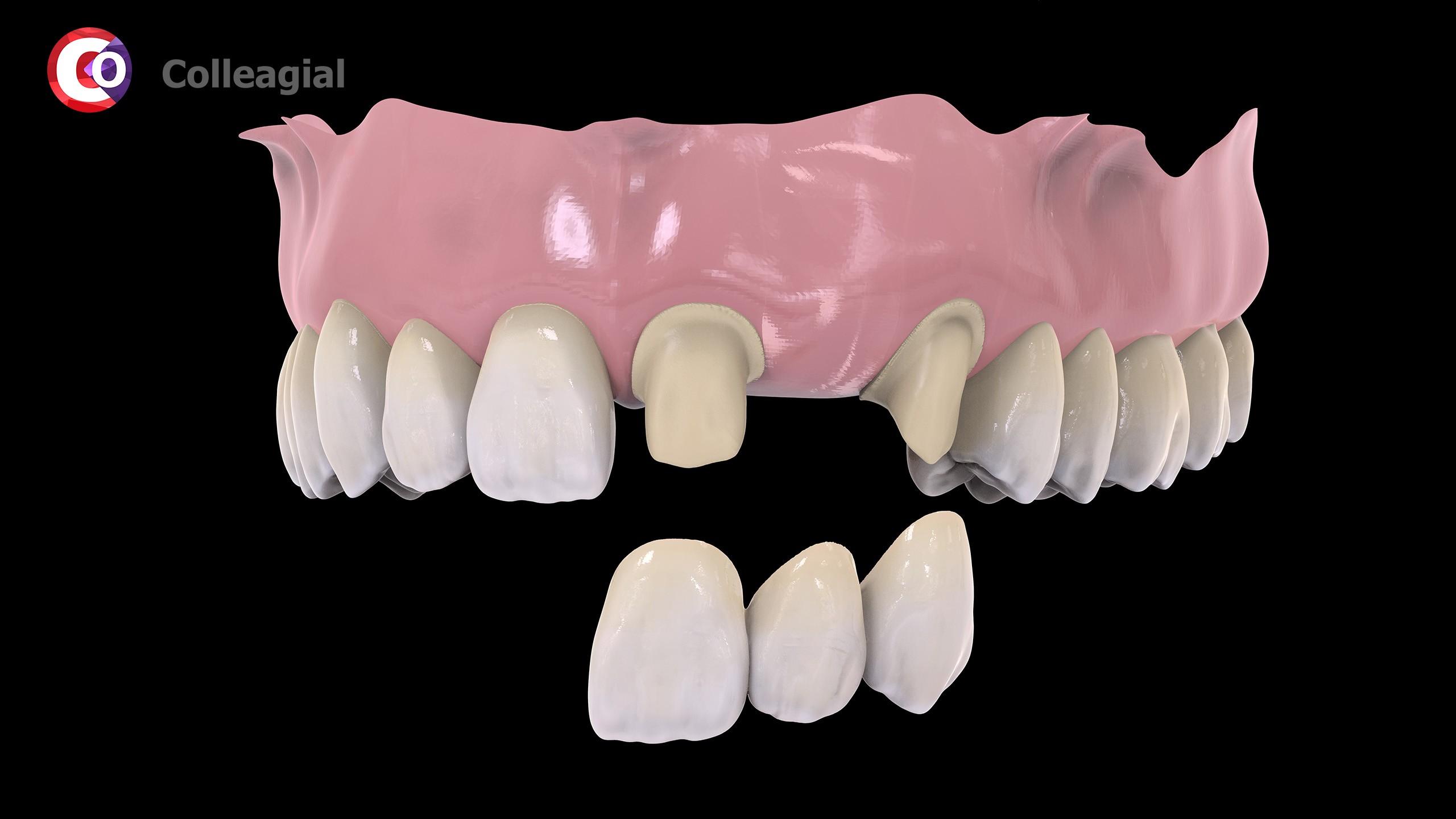 cirkonievye-nesemnye-zubnye-protezy-02