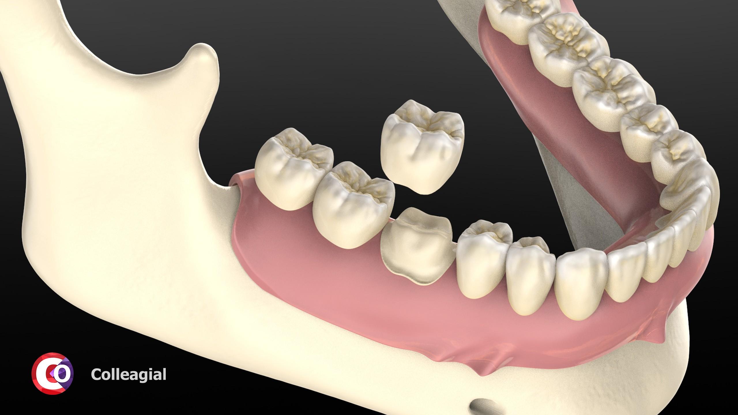 cirkonievye-nesemnye-zubnye-protezy-03
