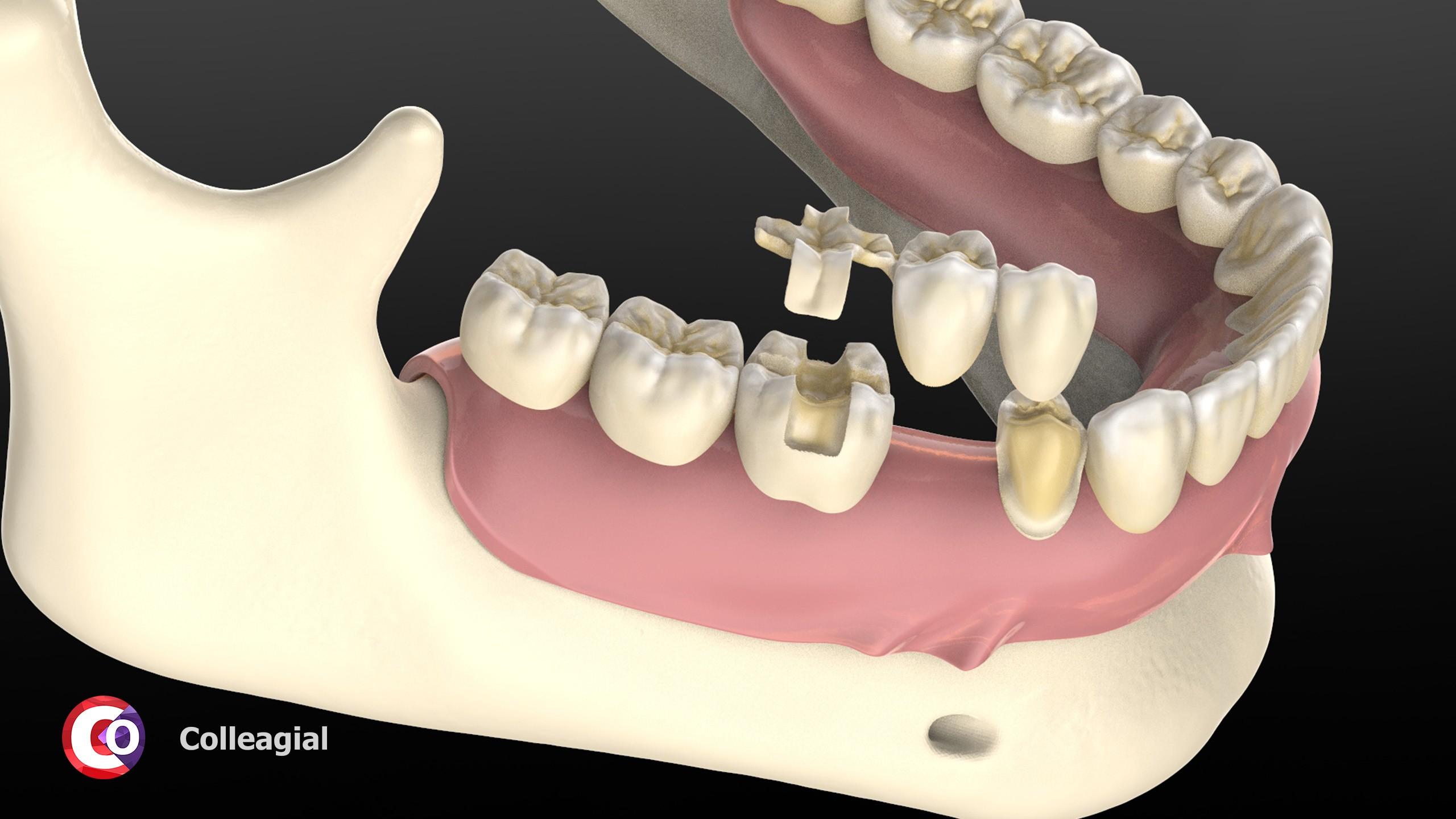 cirkonievye-nesemnye-zubnye-protezy-04