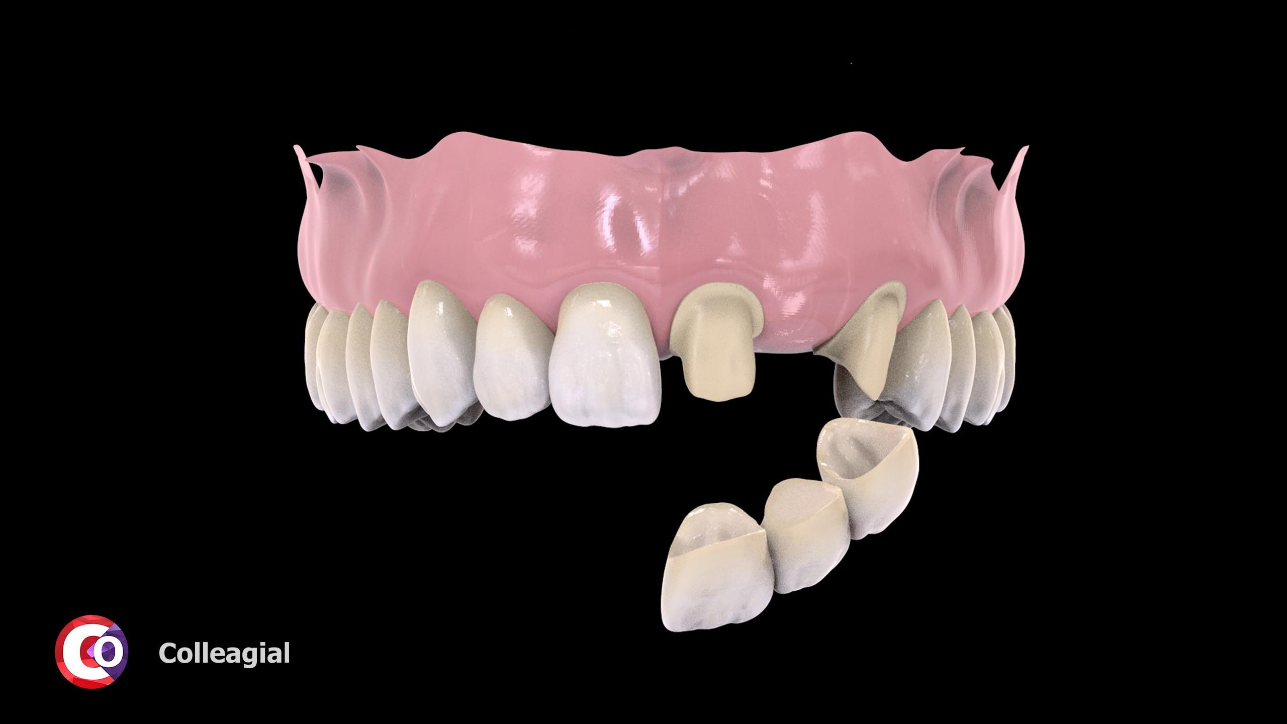 cirkonievye-nesemnye-zubnye-protezy-05