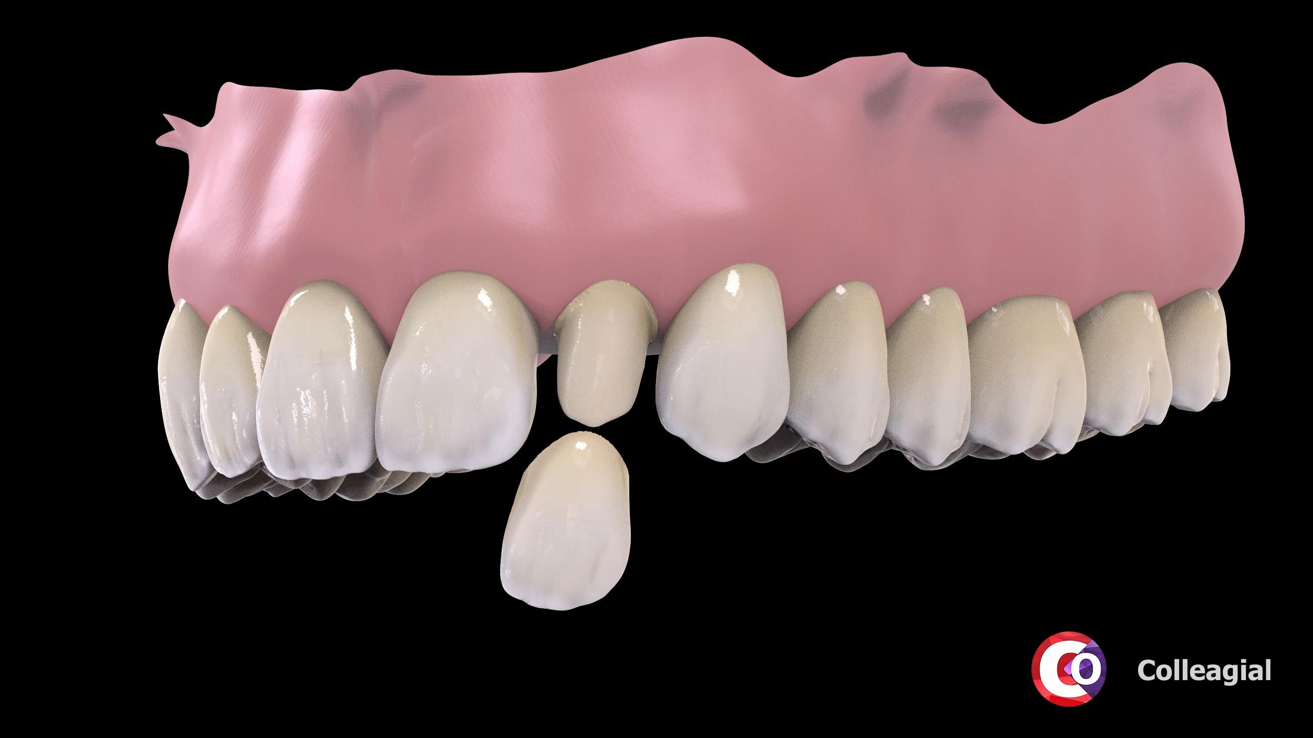 cirkonievye-nesemnye-zubnye-protezy-06
