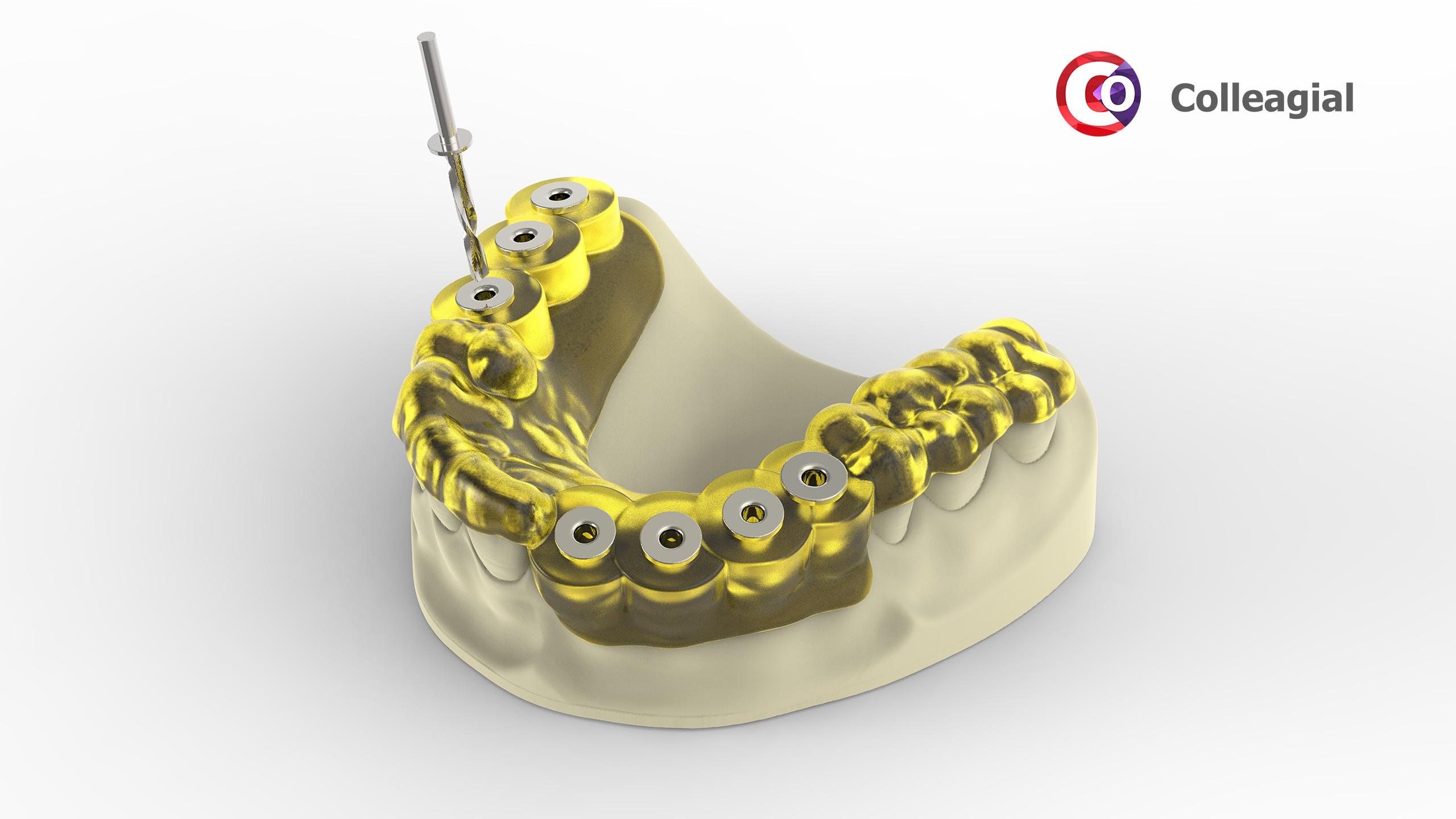 dentalnaya-implantaciya-02