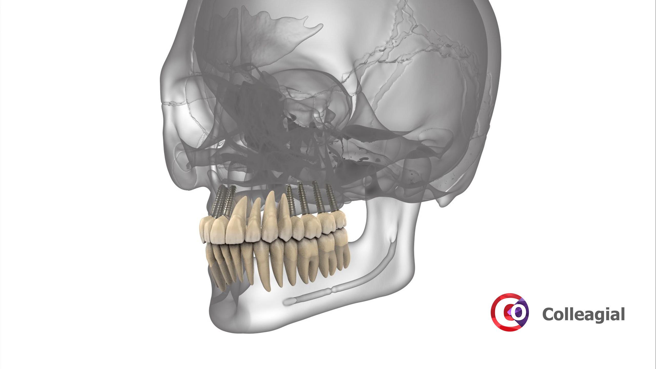 dentalnaya-implantaciya-04
