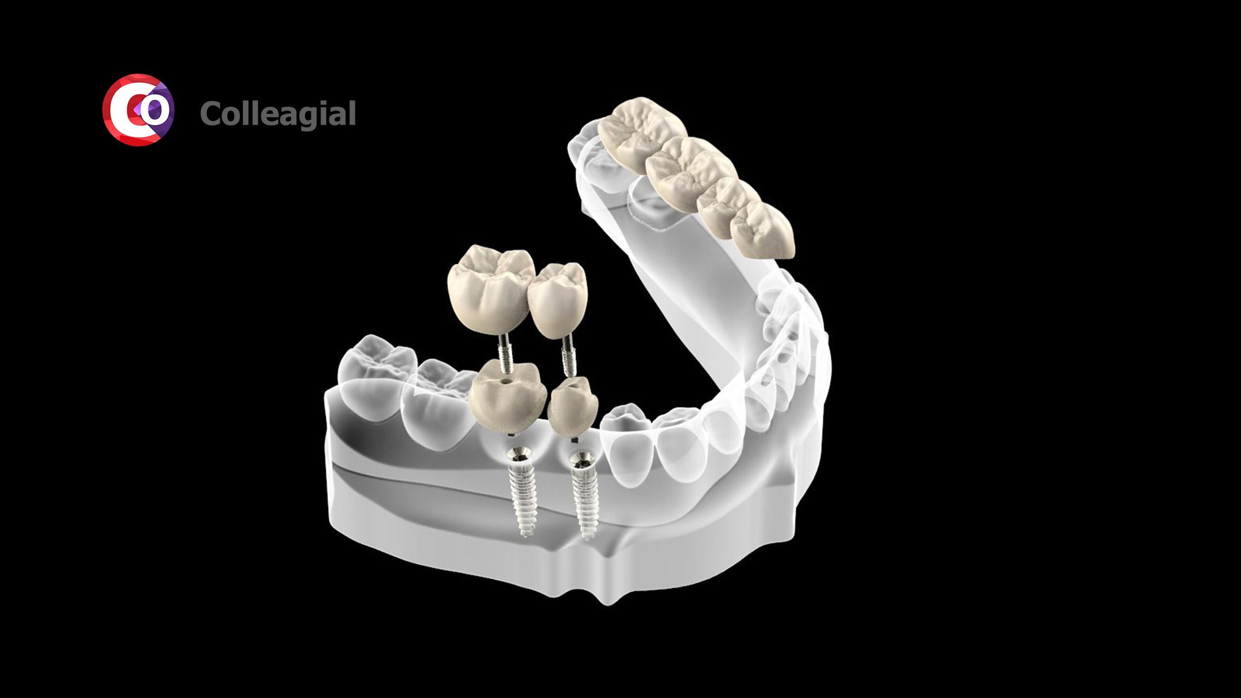 dentalnaya-implantaciya-05