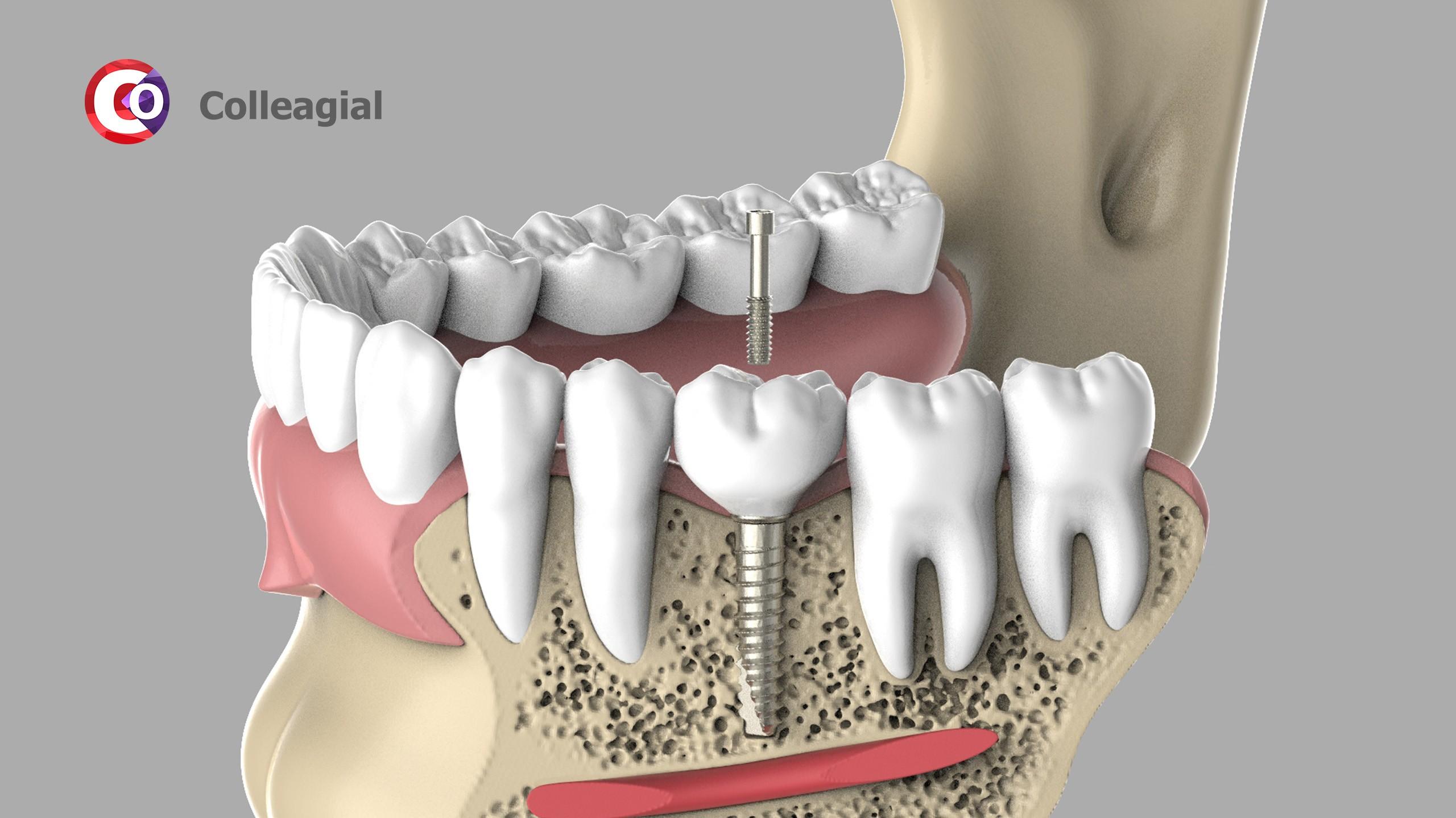 dentalnaya-implantaciya-06
