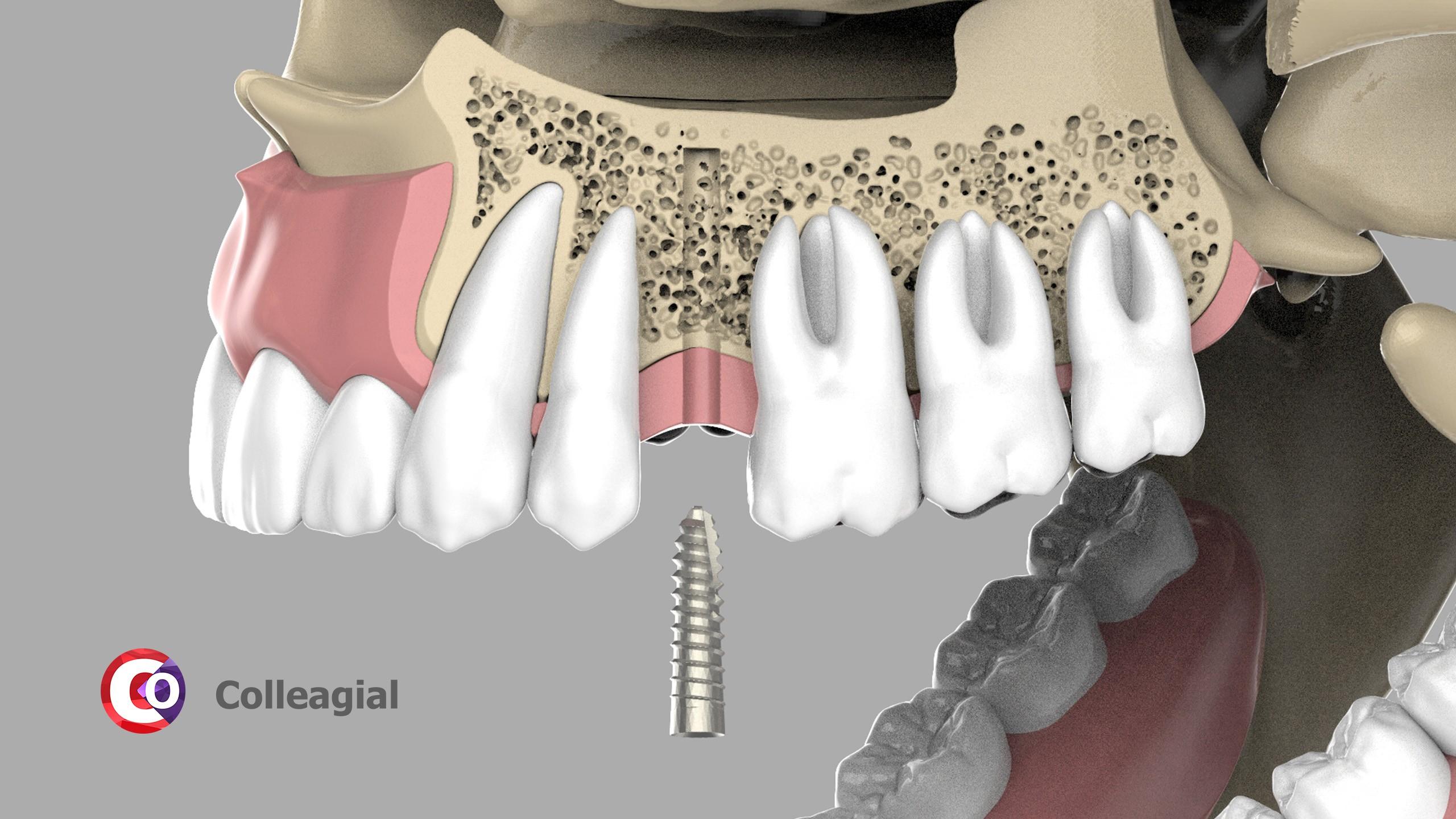 dentalnaya-implantaciya-08