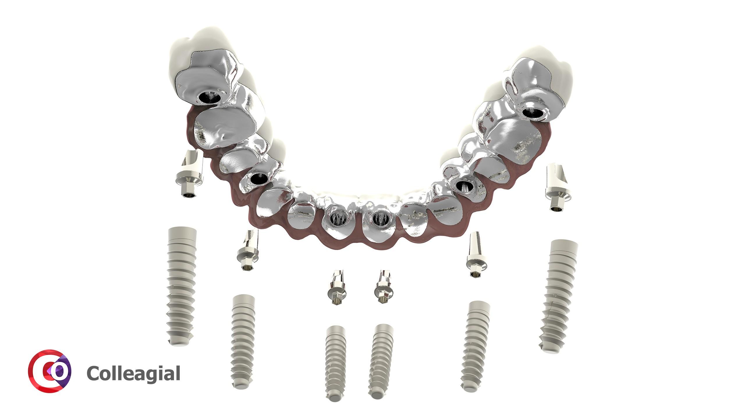 dentalnaya-implantaciya-09