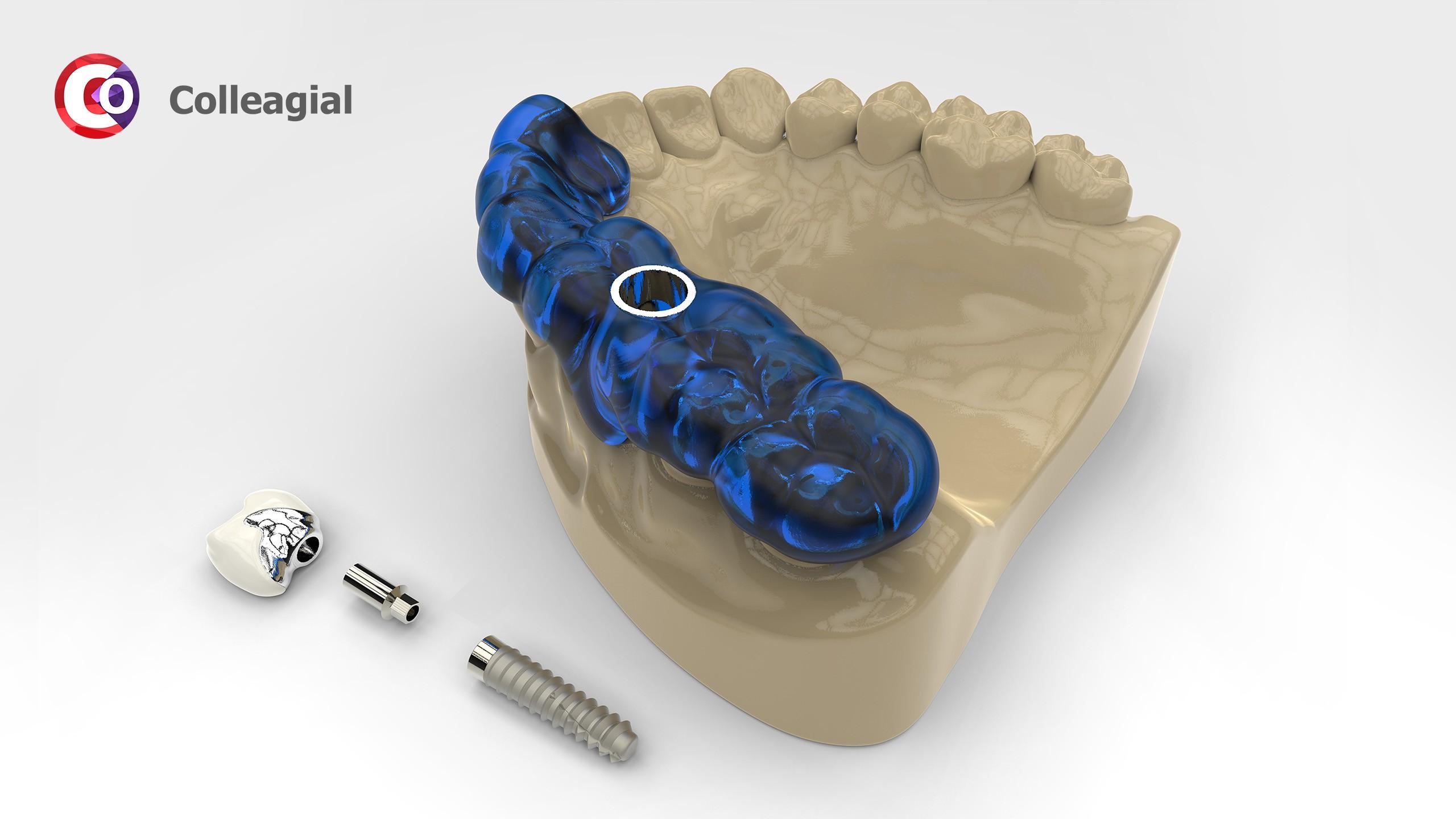 dentalnaya-implantaciya-10