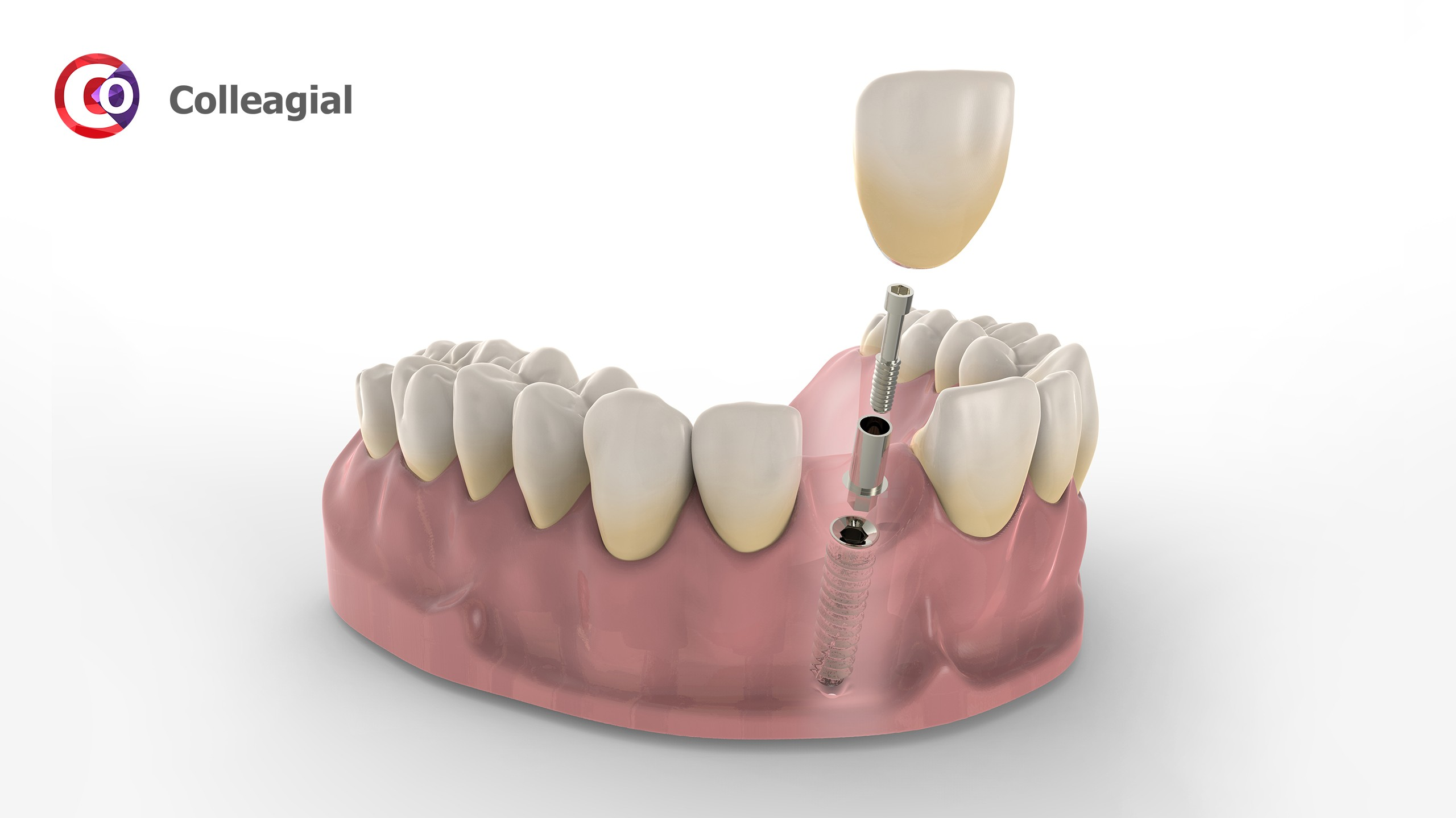 dentalnaya-implantaciya-11
