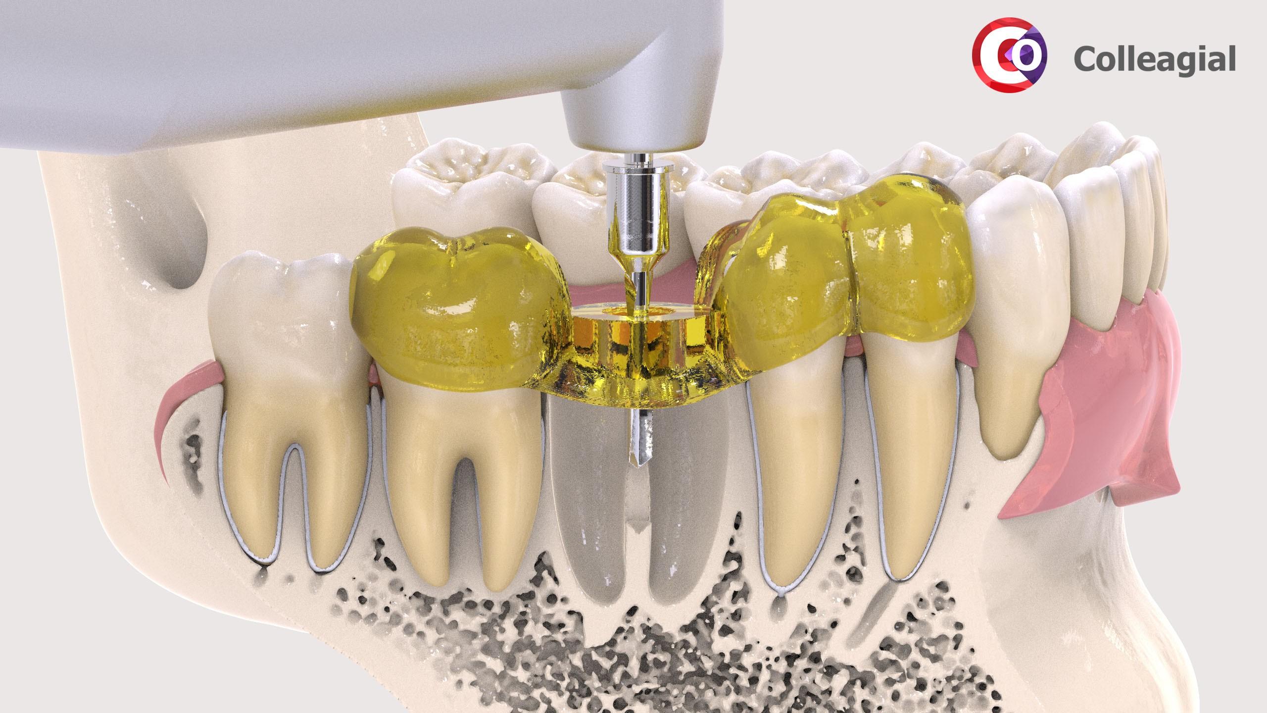 dentalnaya-implantaciya-12