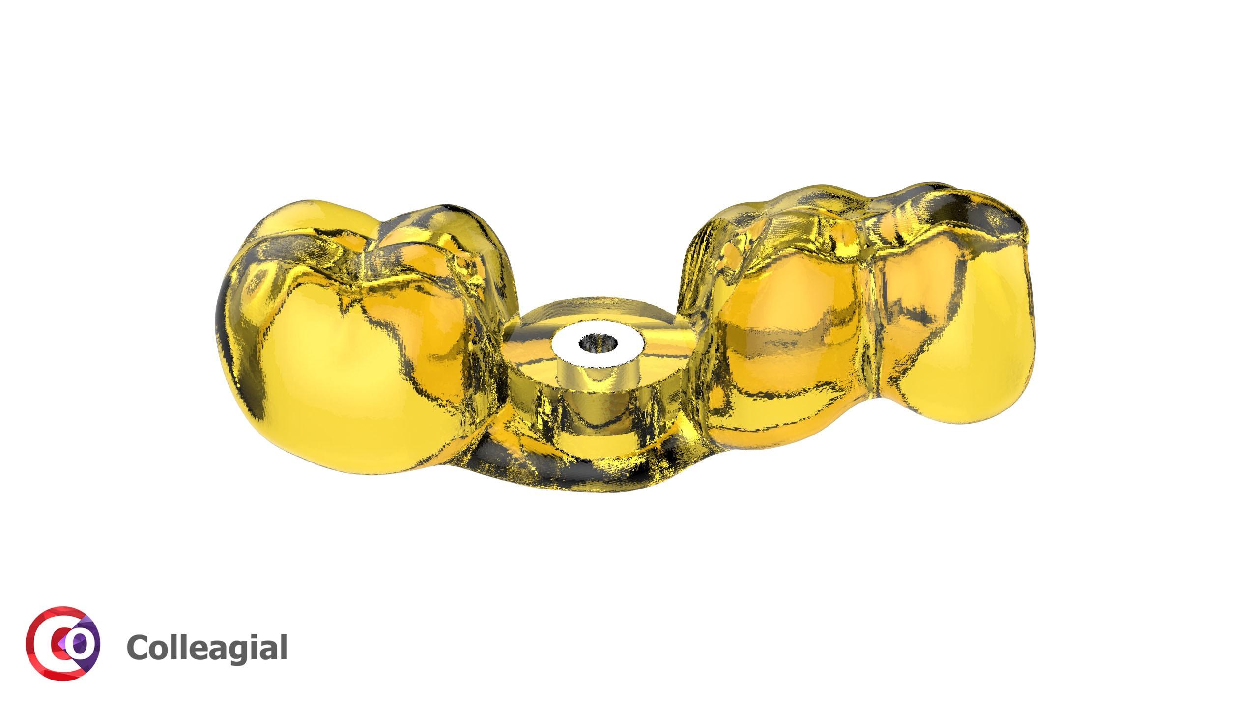 dentalnaya-implantaciya-14