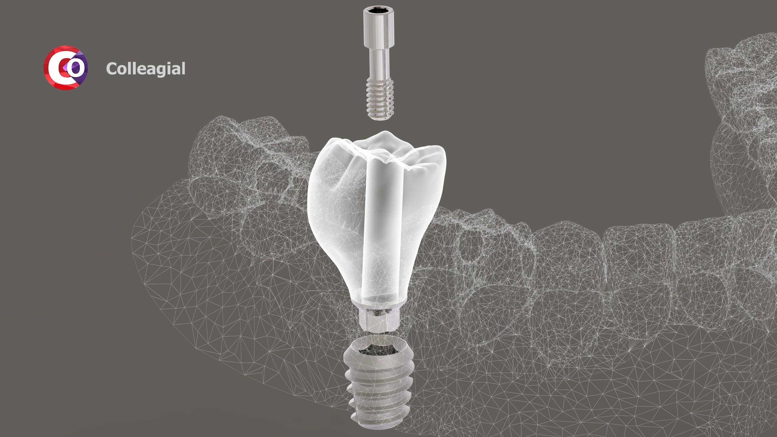 dentalnaya-implantaciya-15