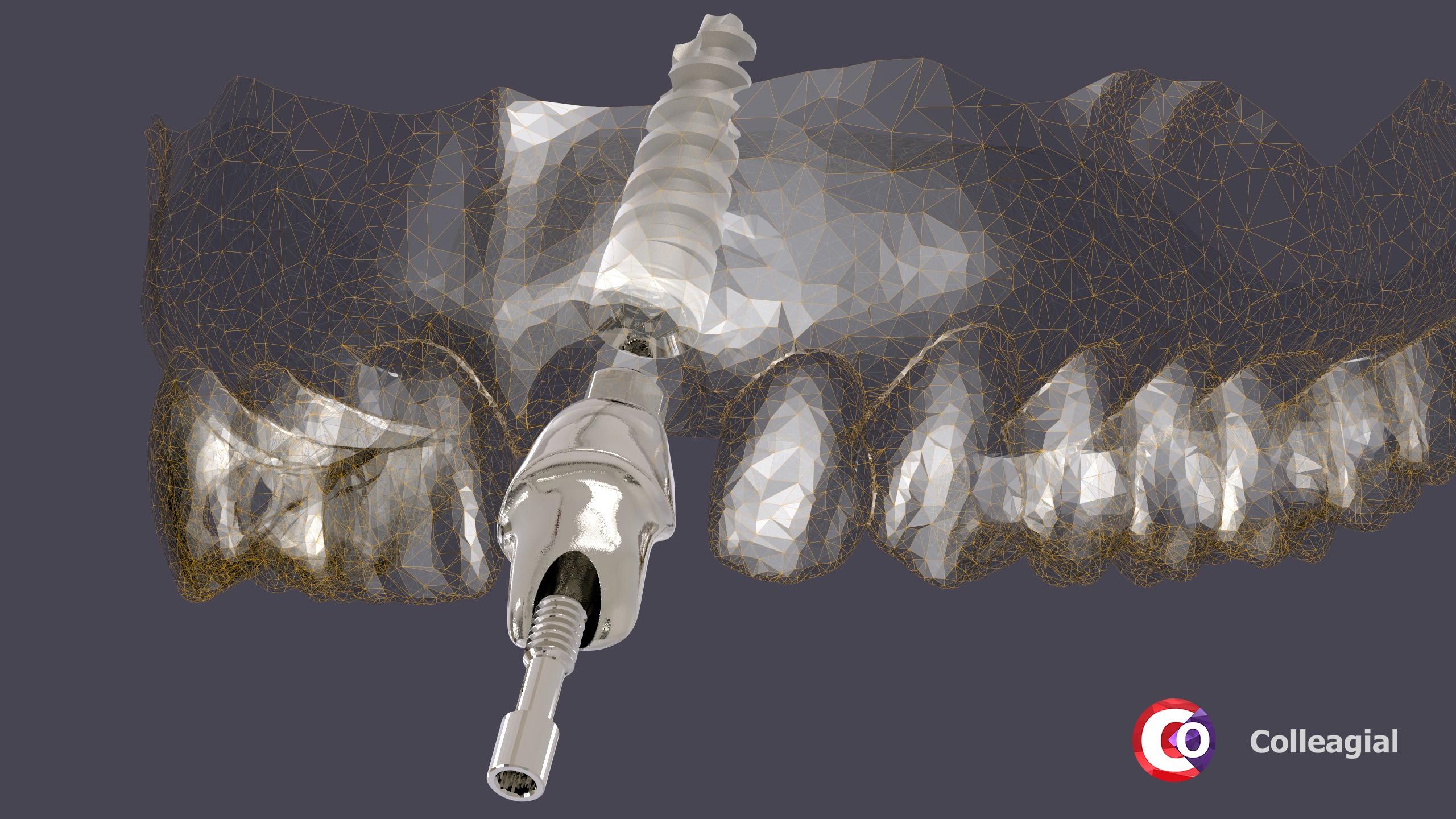 dentalnaya-implantaciya-16