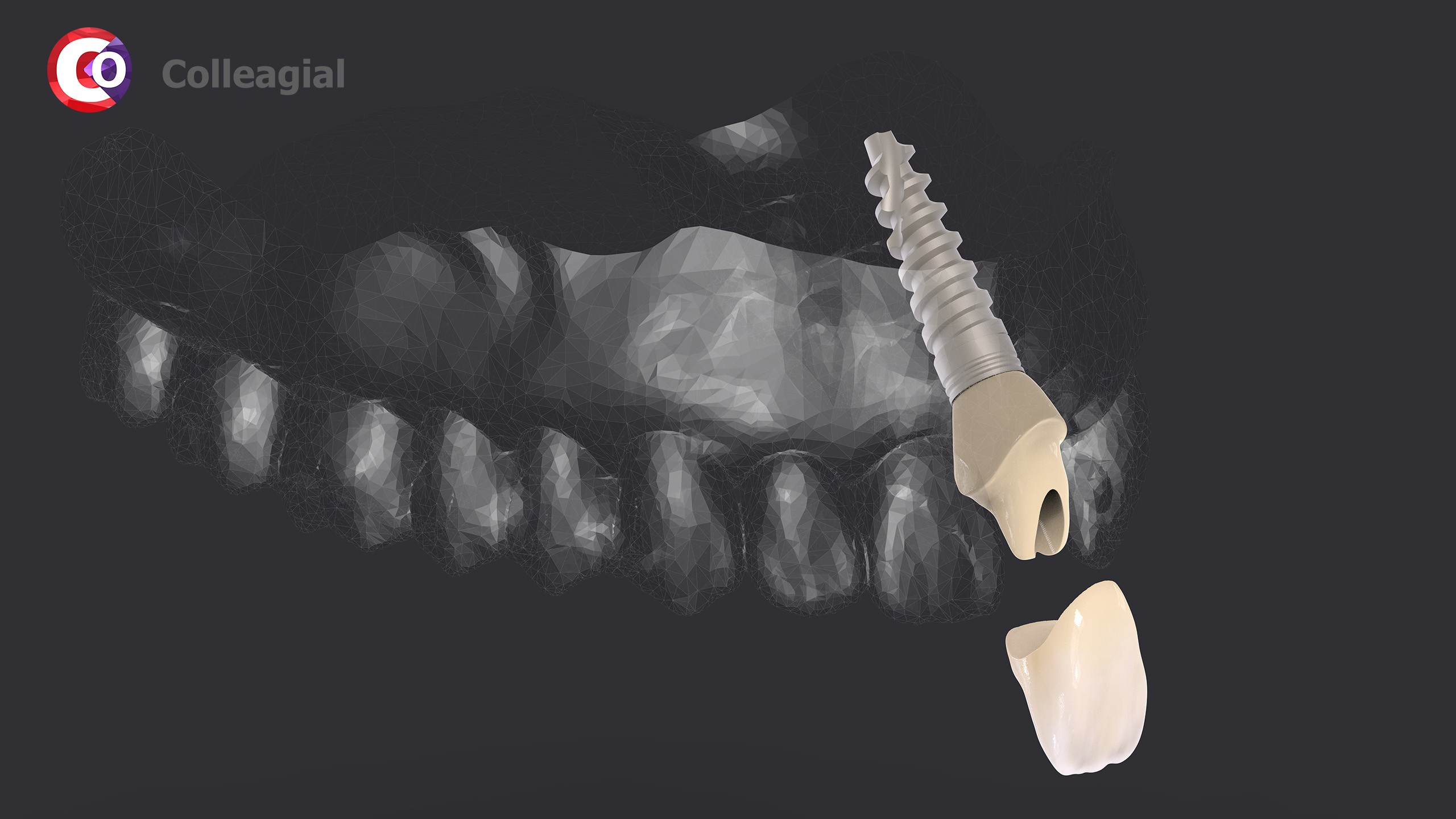 dentalnaya-implantaciya-17