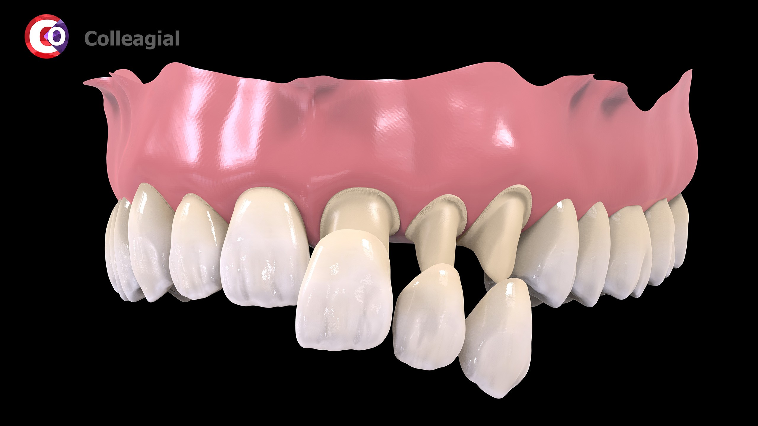 plastikovye-nesemnye-zubnye-protezy-01