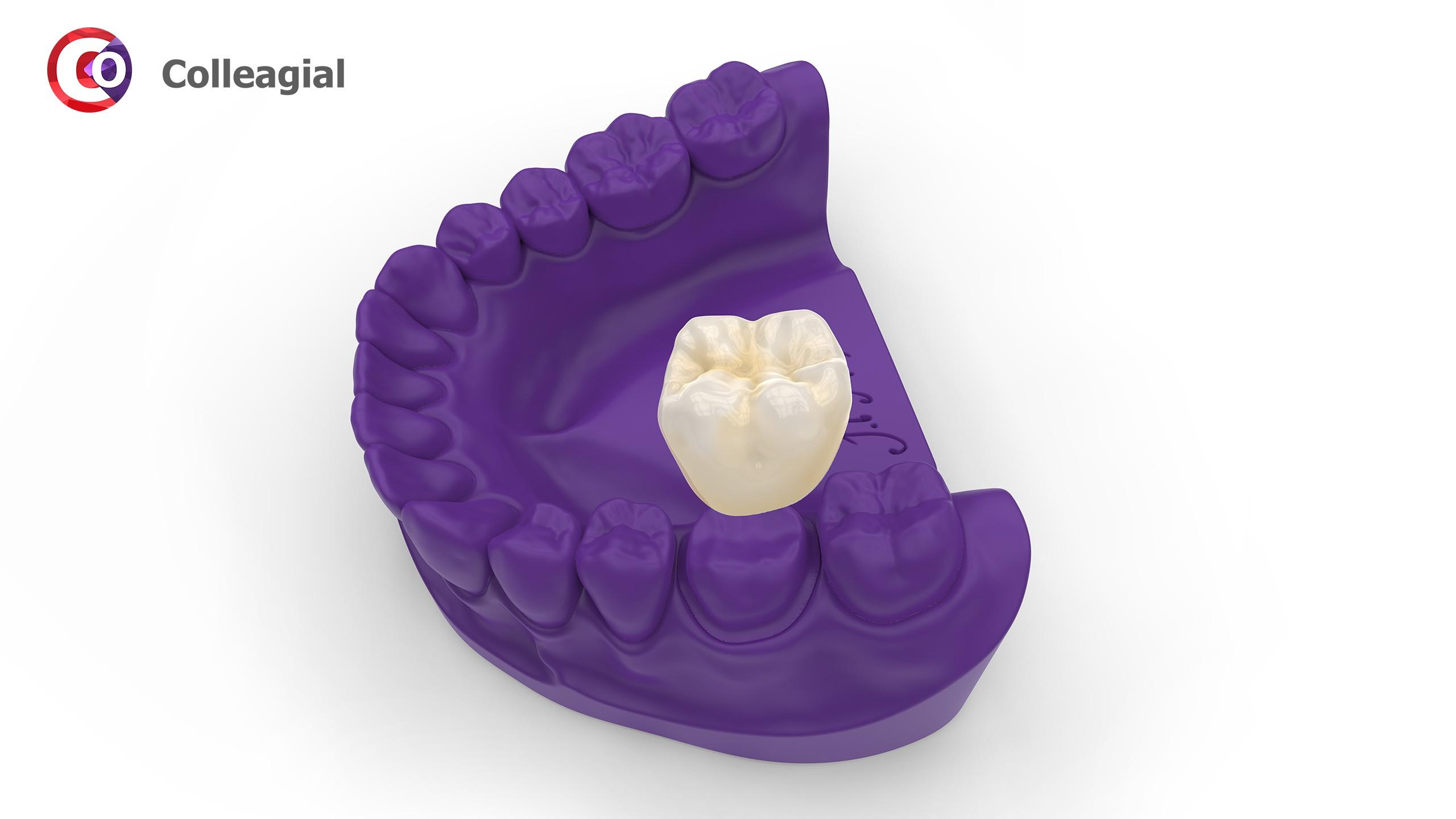 plastikovye-nesemnye-zubnye-protezy-02