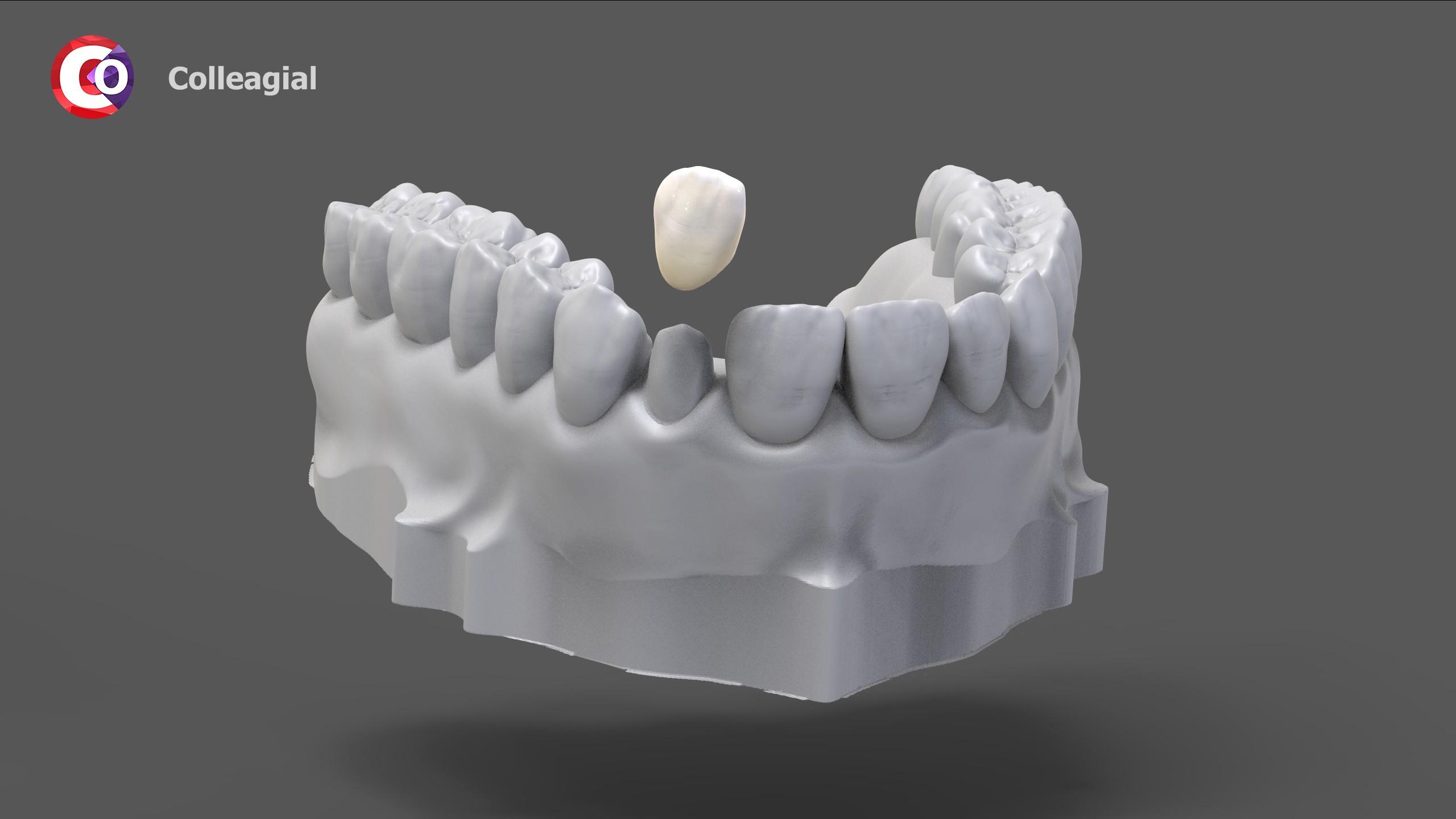 plastikovye-nesemnye-zubnye-protezy-03