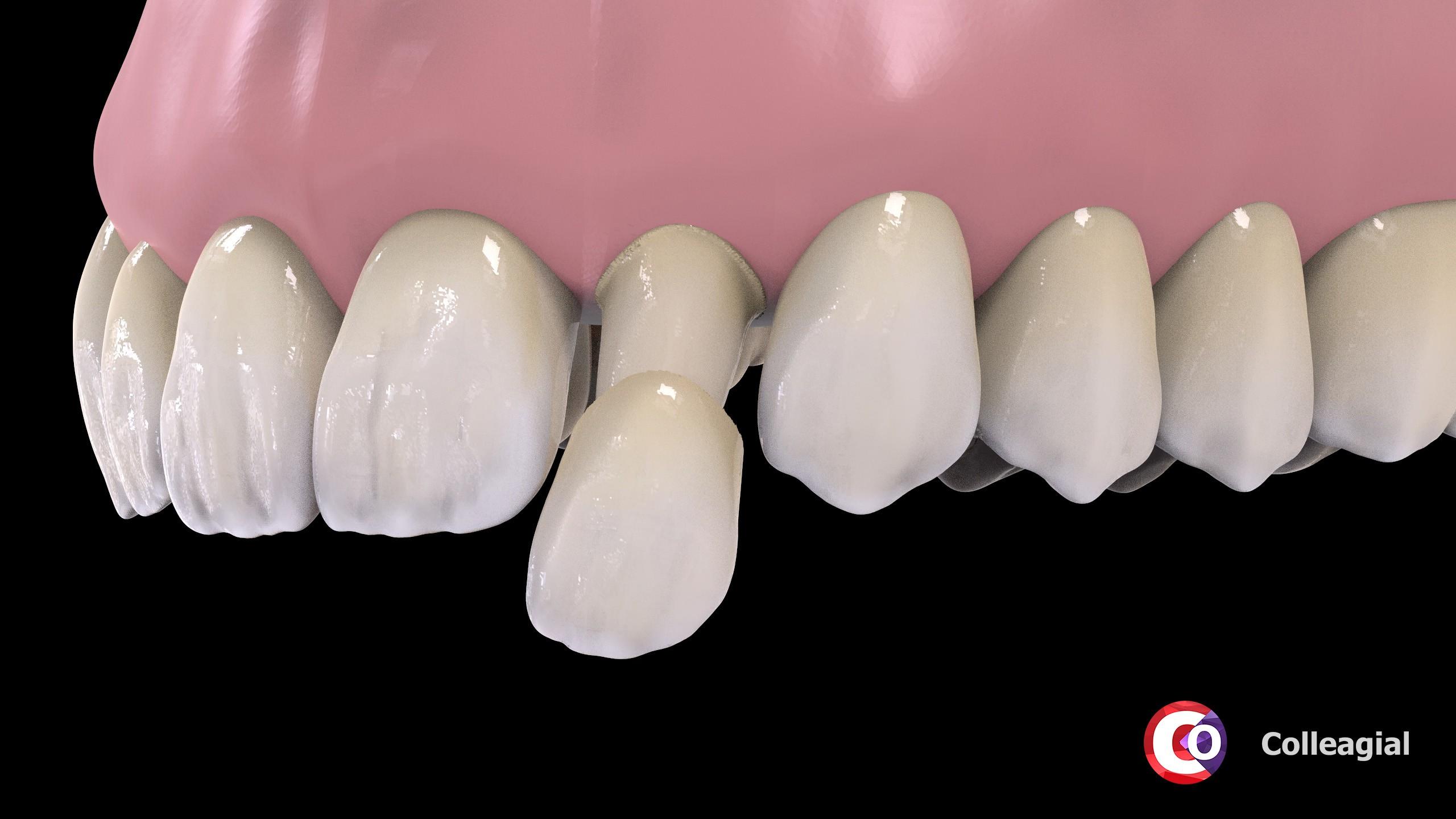 plastikovye-nesemnye-zubnye-protezy-05