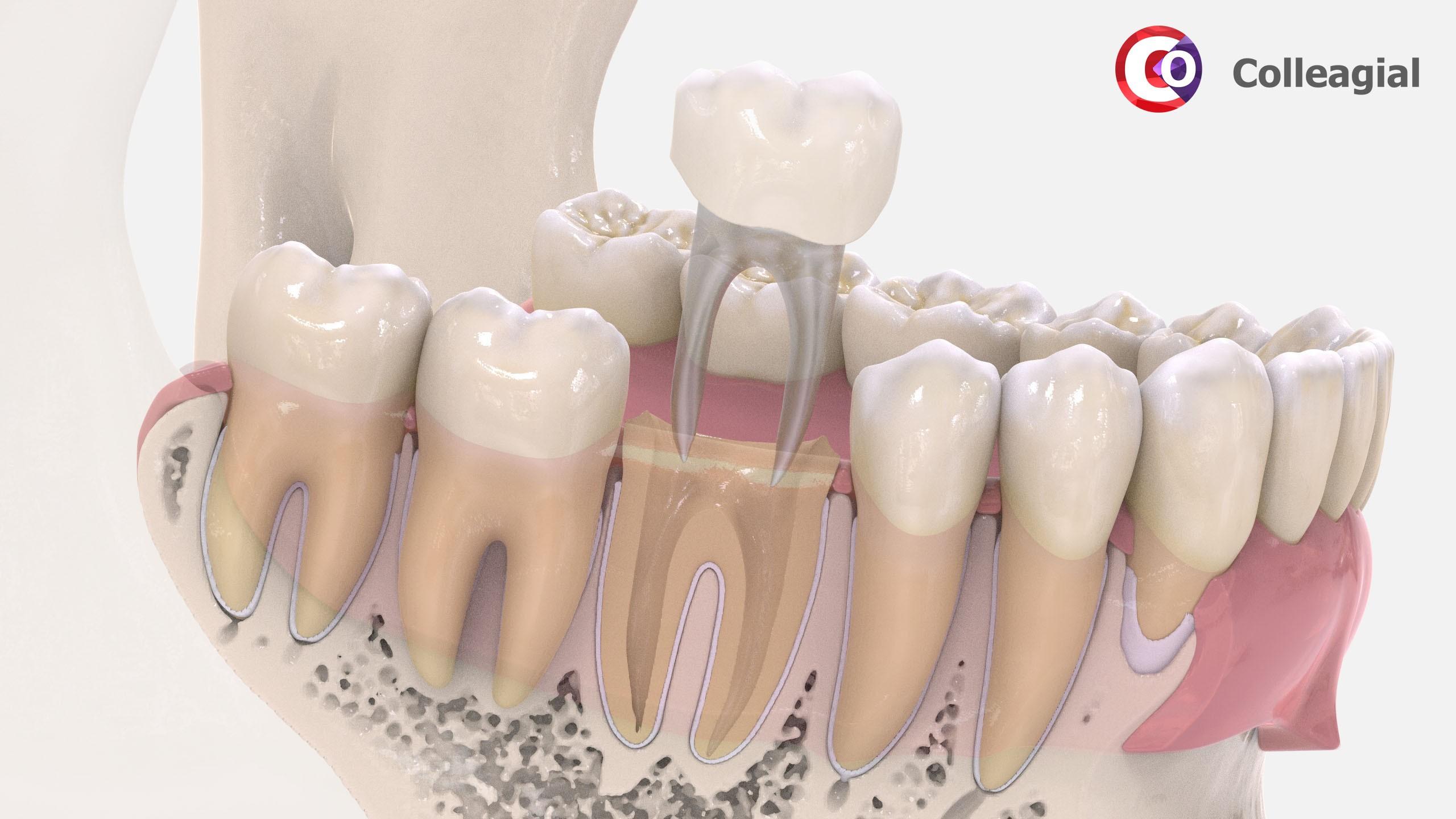 shtiftovyj-zub-06