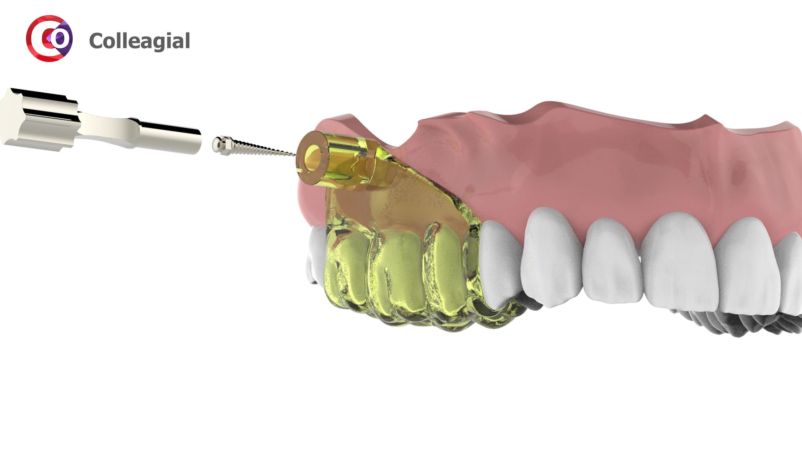Mini-implanty-02