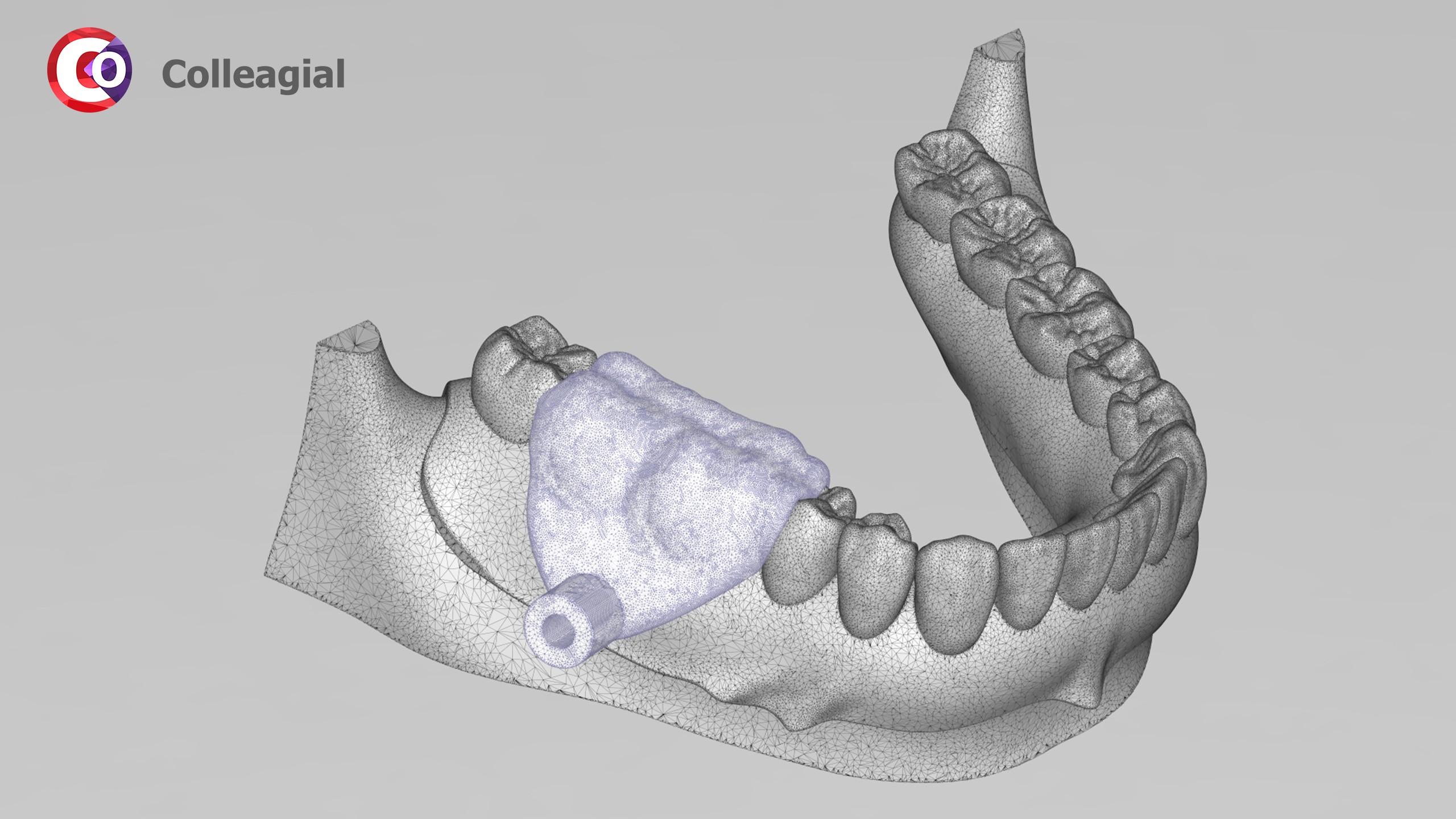 Mini-implanty-03