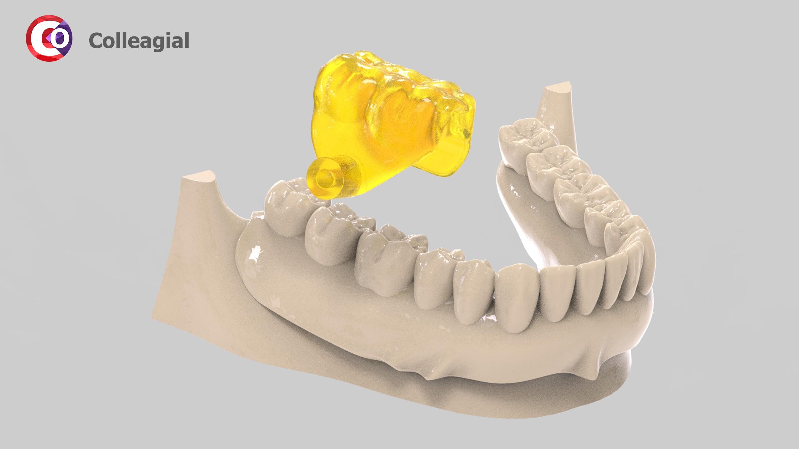 Mini-implanty-04