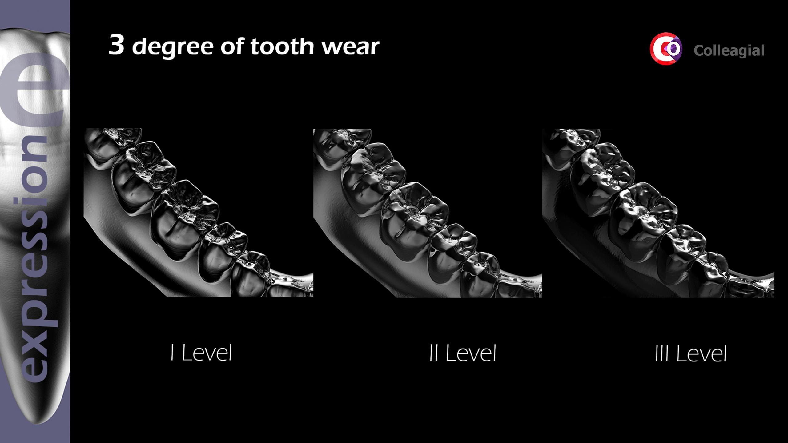 Stiraemost-zubov-01