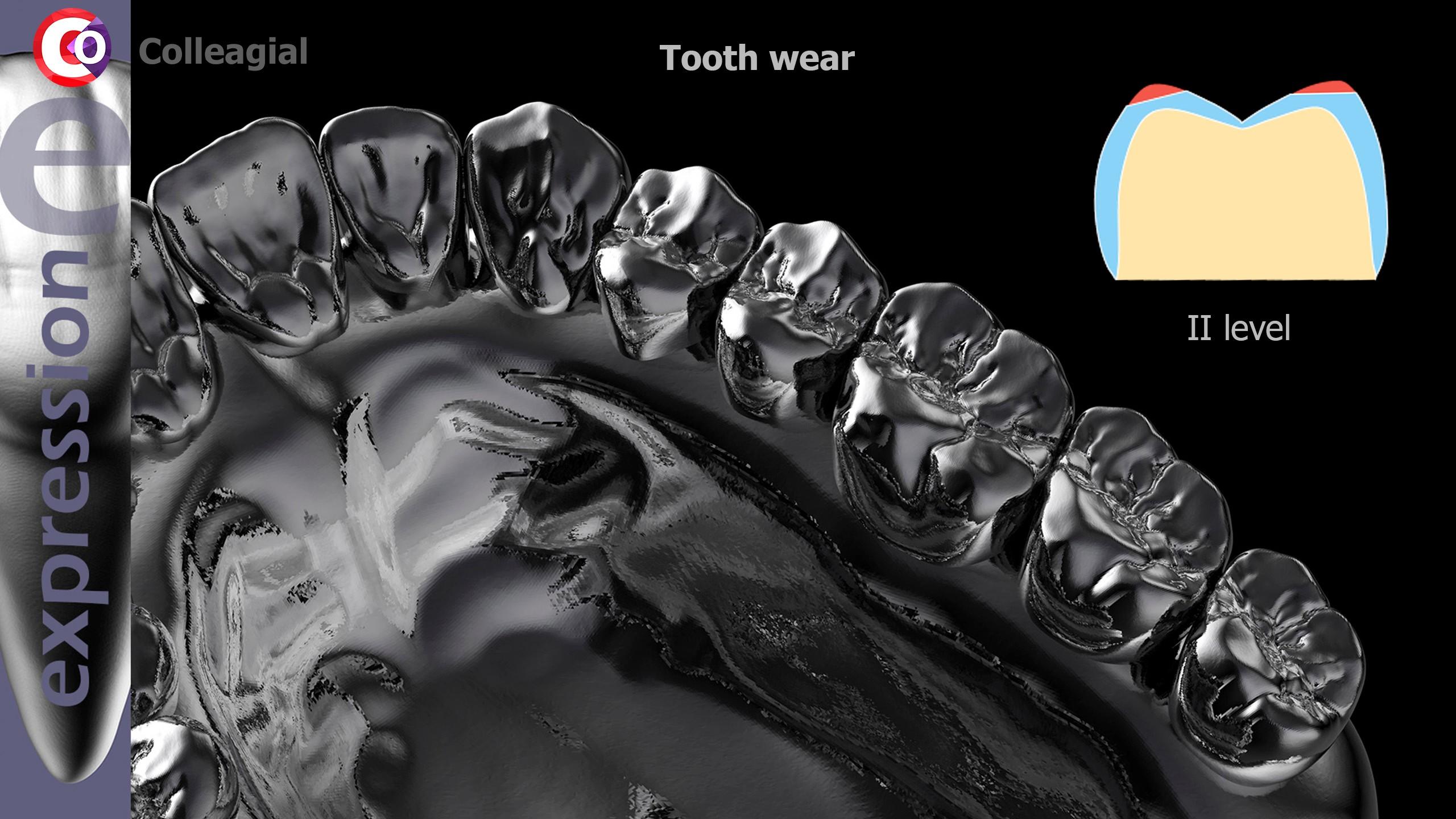 Stiraemost-zubov-03