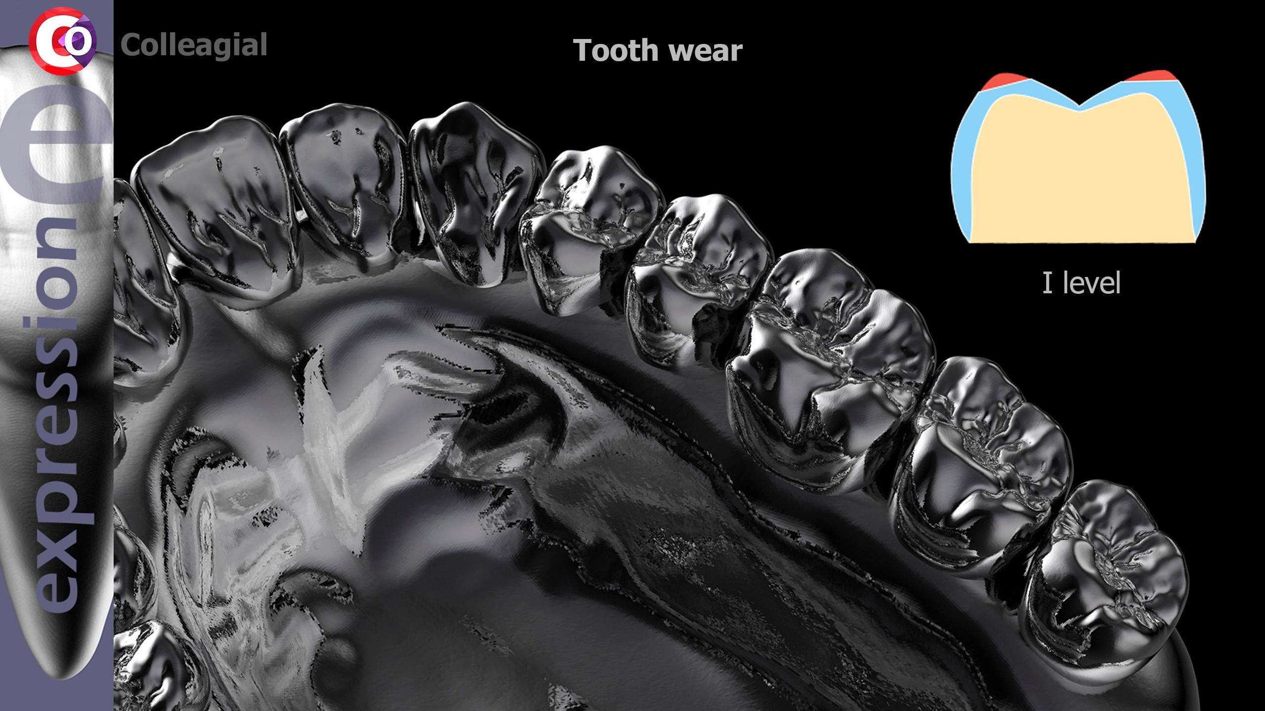 Stiraemost-zubov-04