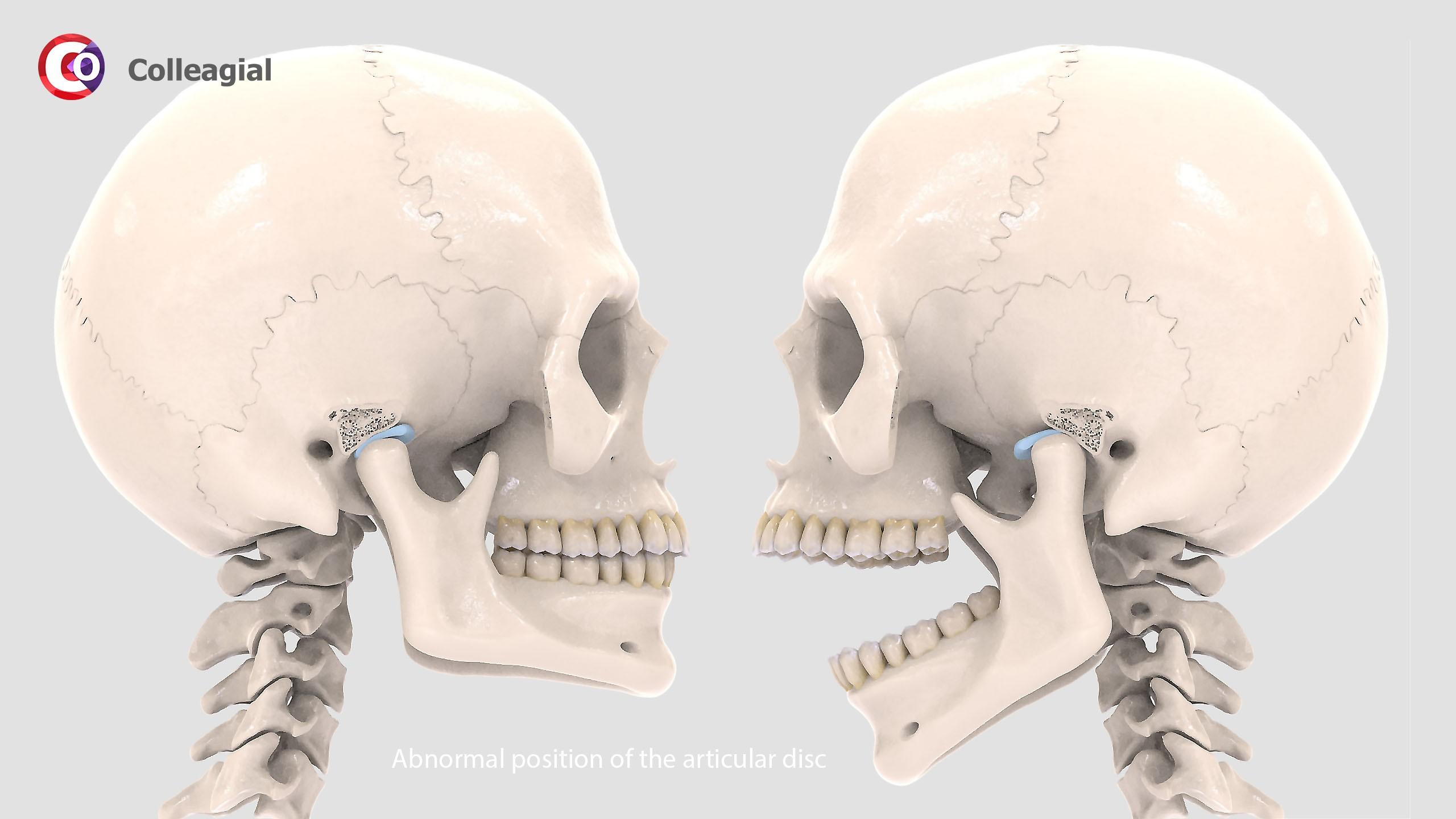 Visochno-nizhnechelyustnoj-sustav-04