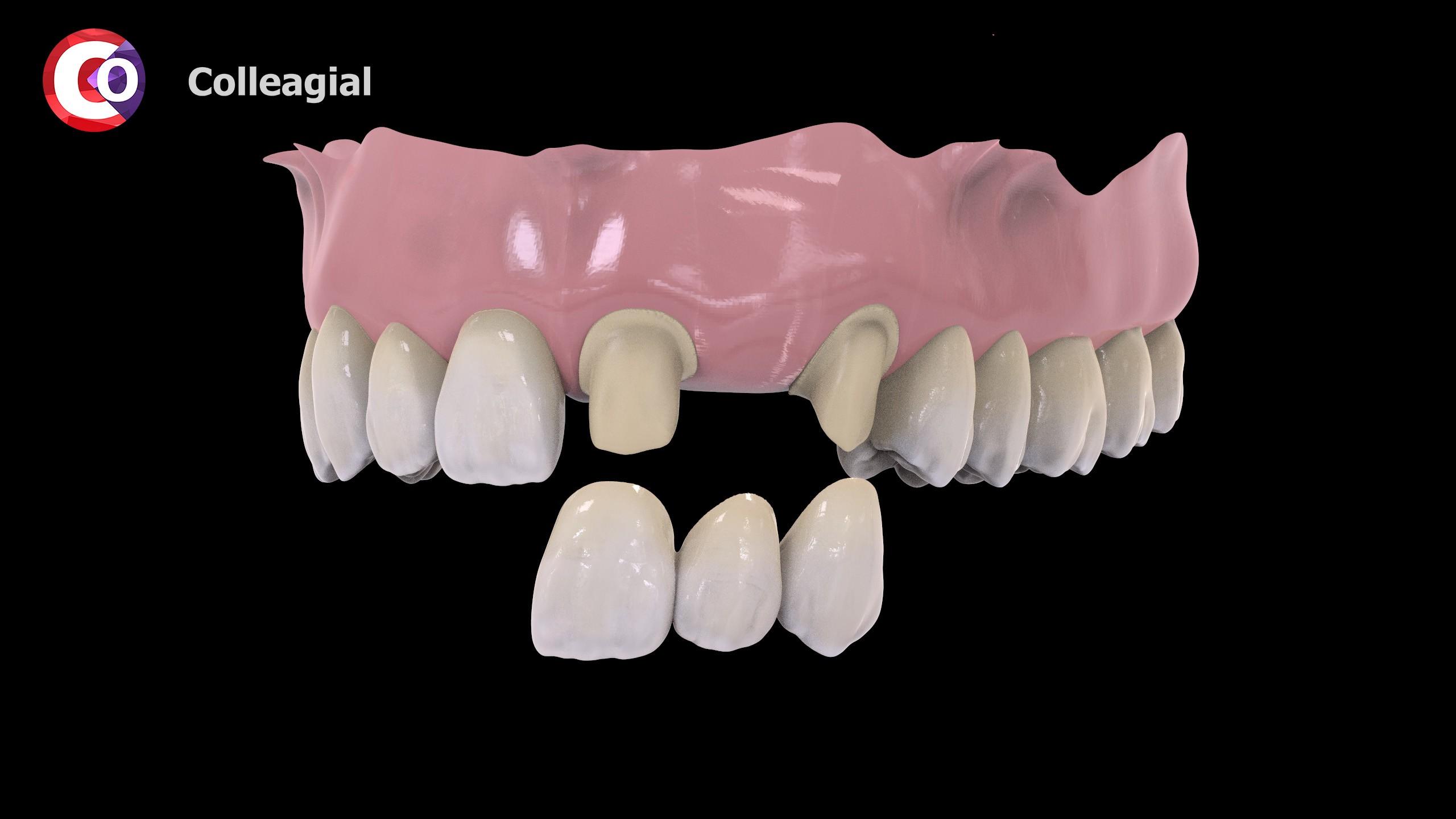plastikovye-nesemnye-zubnye-protezy-04