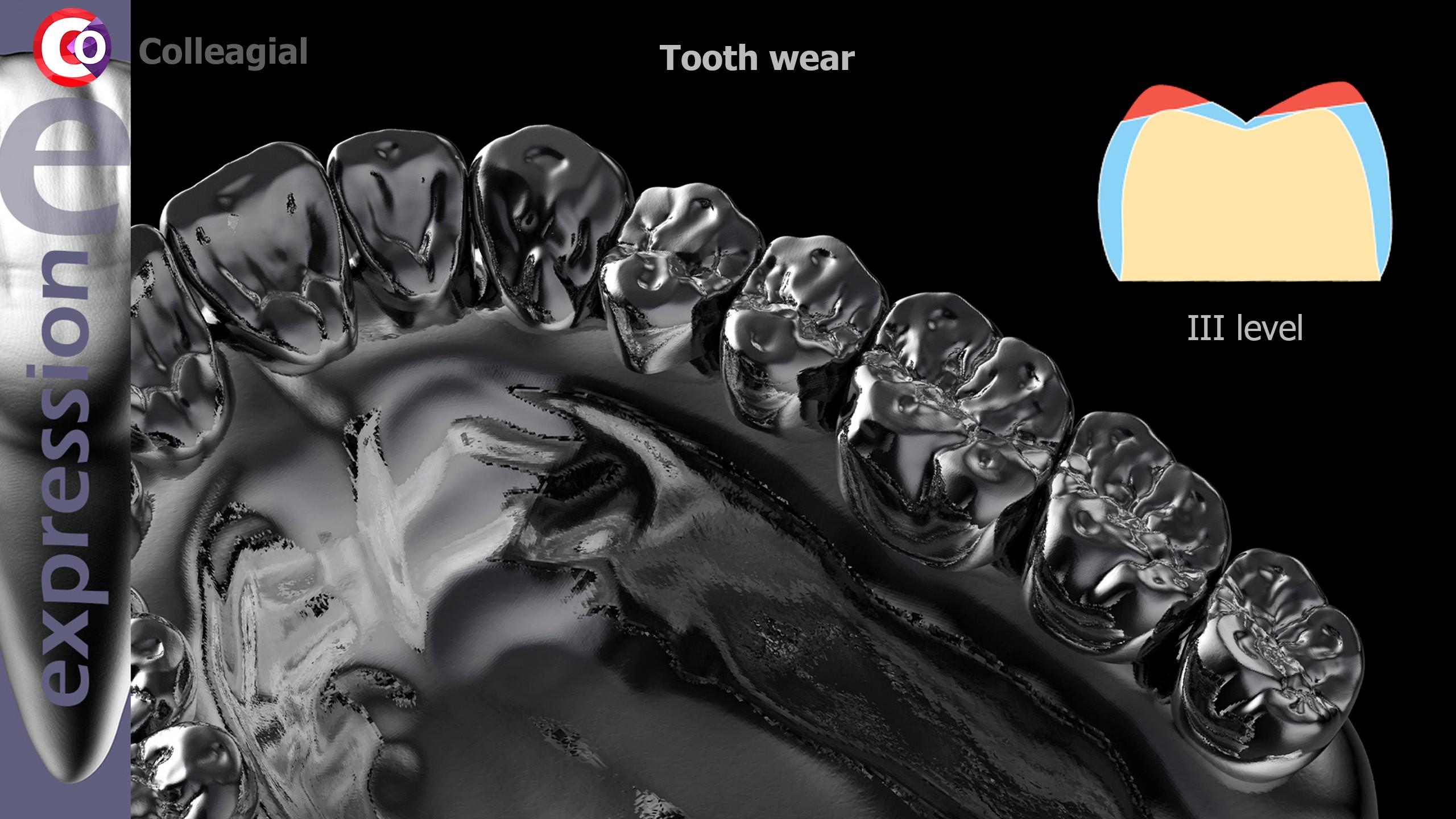 Stiraemost-zubov-02