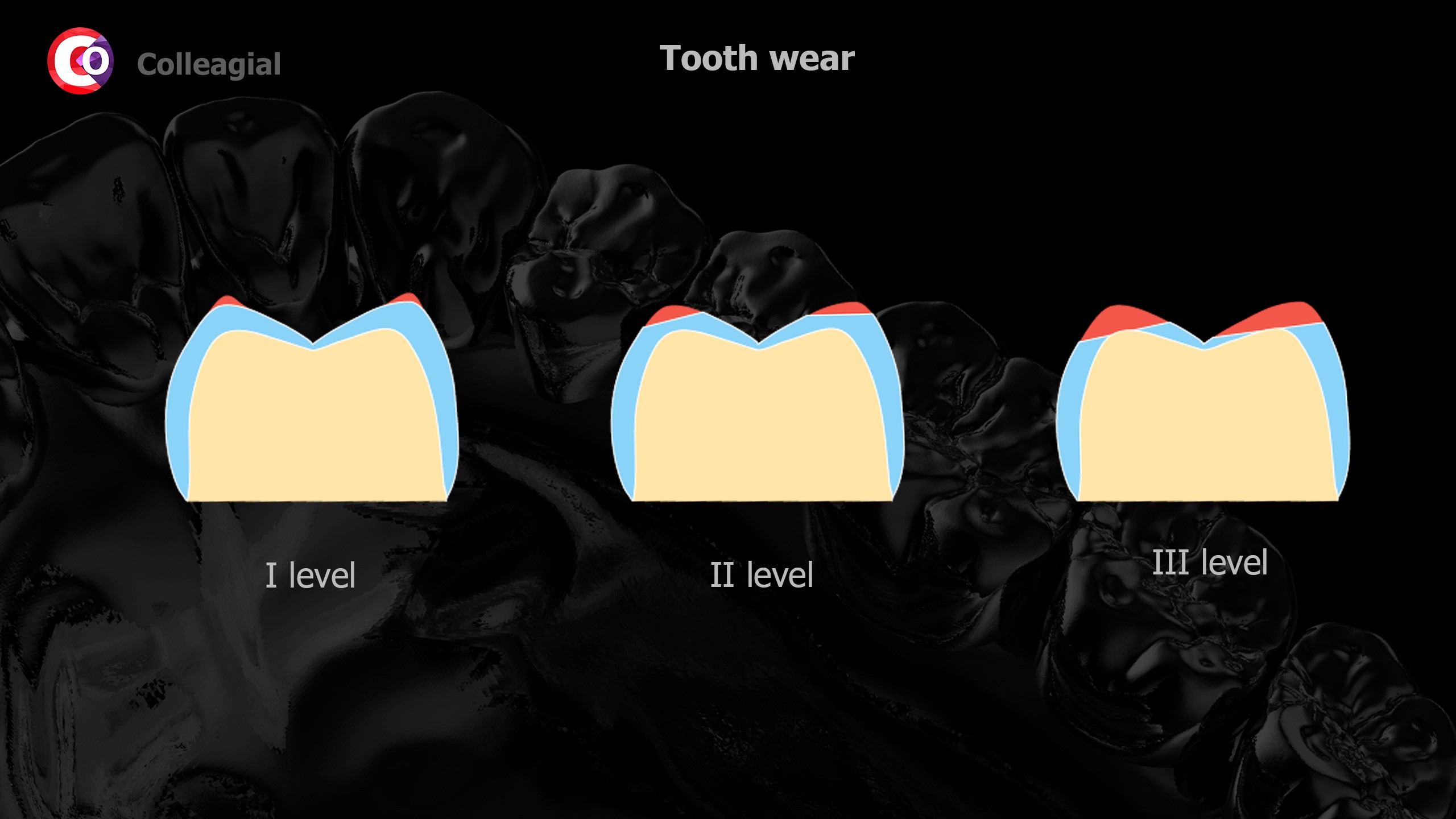 Stiraemost-zubov-05